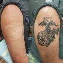 USMC Scar Cover Up Tattoo